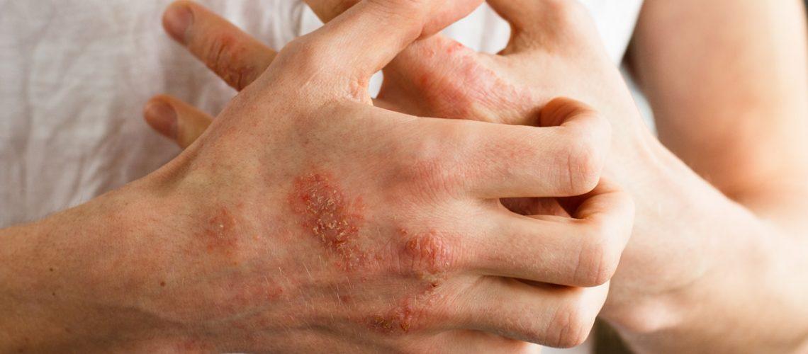 Balmy Fox Eczema Skincare Outdoors Sports